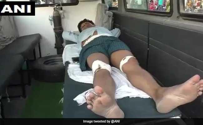 बिहार : पूर्व PM अटल को लेकर फेसबुक पोस्ट की वजह से प्रोफेसर की पिटाई, जिंदा जलाने की कोशिश, इलाज के लिए पटना रेफर