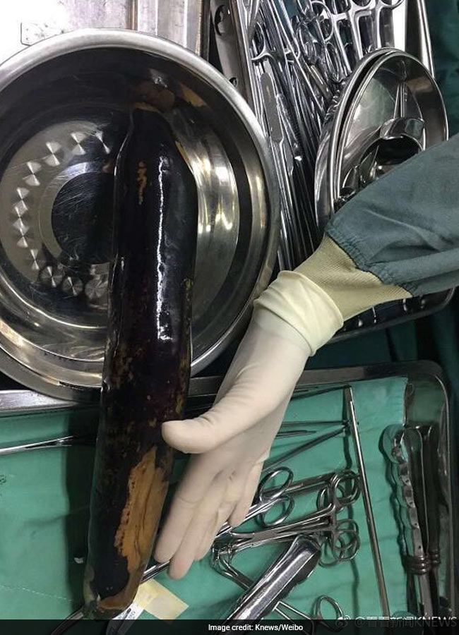 eggplant removed from body
