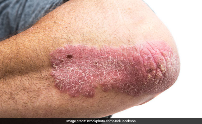 Natural And Simple Home Remedy For Psoriasis And Eczema: You Cannot Miss This One