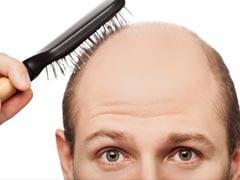 इस अनूठी दवा से रूक सकता है बालों का झड़ना