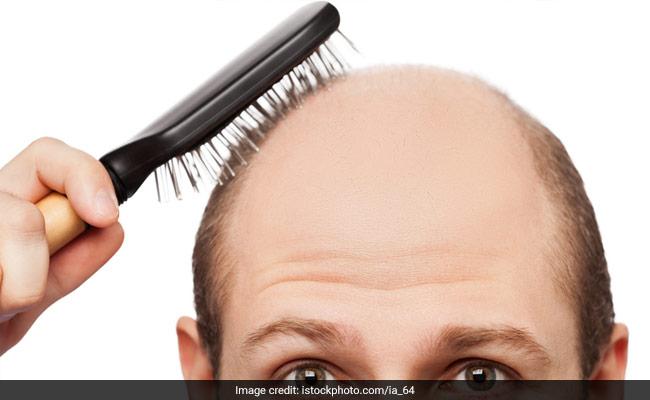बालों का झड़ना अब होगा बंद, एक अनूठी दवा की हुई खोज