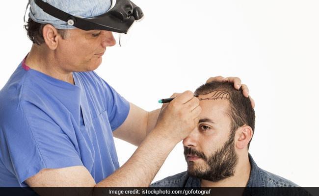 Hair Transplant सर्जरी के बारे में जानें सबकुछ, कैसे ये गंजेपन से छुटकारा पाने का है असरदार तरीका
