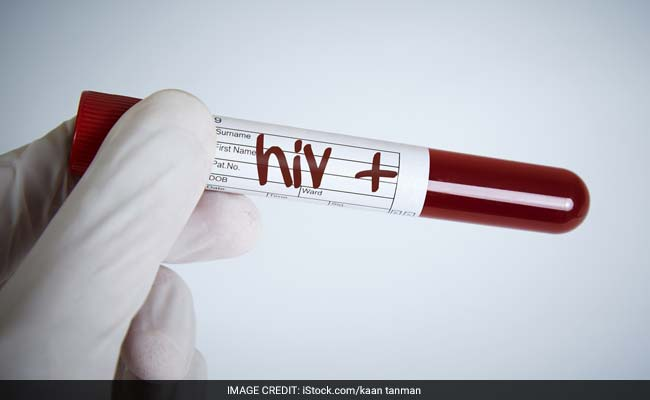 Pakistan Seeks Help From WHO To Probe HIV Outbreak: Report