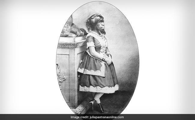 'The Bear Woman': The Brief, Sad Life Of Julia Pastrana