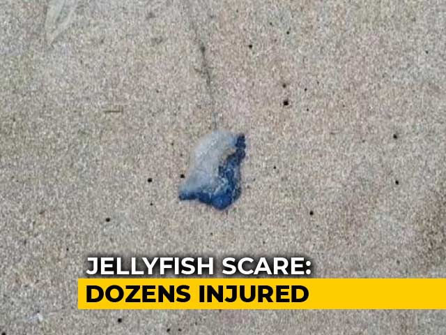 Video : Over 150 Injured In Blue Bottle Jellyfish Attacks At Mumbai Beaches