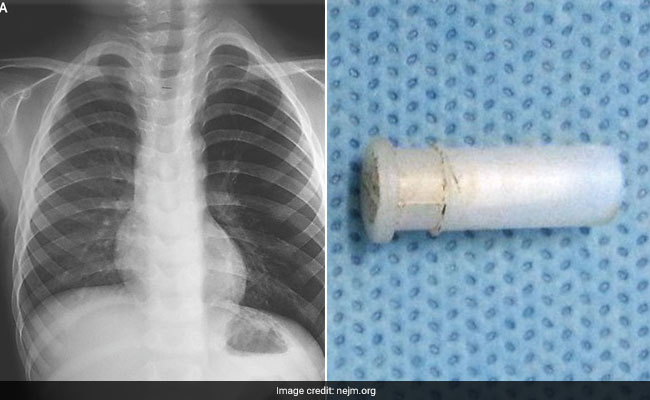 AIIMS Cures 4-Year-Old Of 'Whistling Cough' - He Had Whistle Stuck In Throat