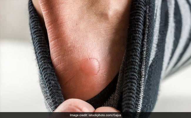 6 Home Remedies To Cure Blisters
