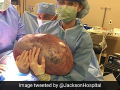 She Kept Gaining Weight, Didn't Know Why. It Was A 50-Pound Ovarian Cyst