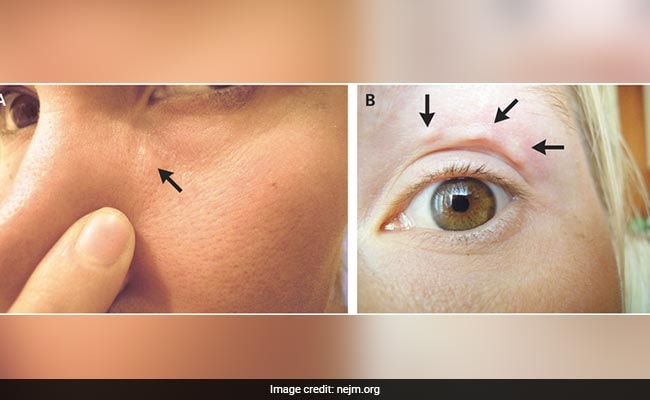 Blemishes On Her Face Kept Moving. It Was A Parasitic Worm Under Her Skin