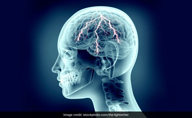 Lung Disease Could Lead To Dementia In Later Life: Study