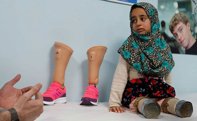 A Syrian Girl Used Tin Cans For Legs. Now She Is Taking Her First Steps