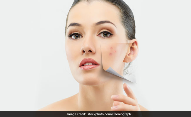 This New Acne Vaccine Could Help Cure Your Skin Problems