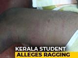 "Video : ""Beaten By Seniors For 3 Hours,"" Says Kerala Student From Hospital Bed"
