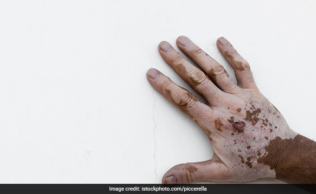 World Vitiligo Day 2018 10 Effective Home Remedies To Treat Vitiligo