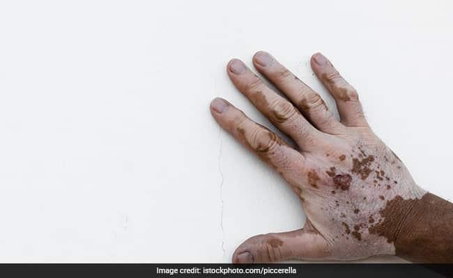 Vitiligo Symptoms Treatments Causes Tests Preventions